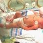 Врачи впервые спасли младенца смозгом вне черепа