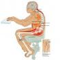 Врачи рассказывают, что такое синдром ранней сидячей смерти и как его предотвратить
