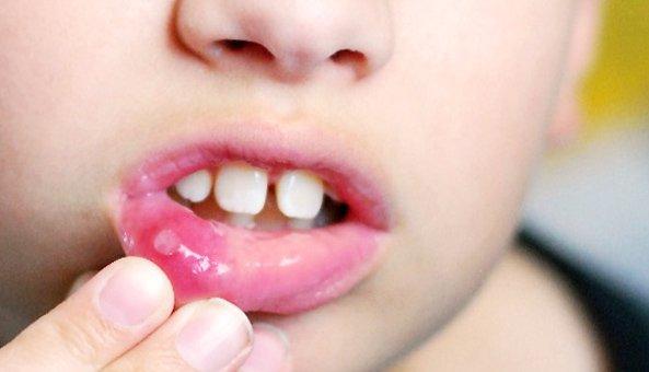 У ребенка во рту язвочки как лечить
